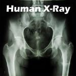 science kit logo - human x-ray